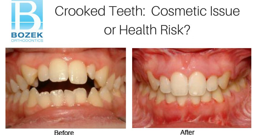 Crooked Teeth: Cosmetic Issue or Health Risk?